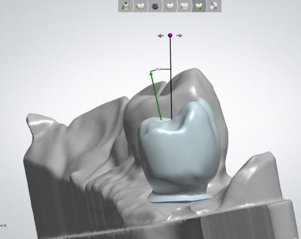 Implantat, Indiv abutment, I Butment 1