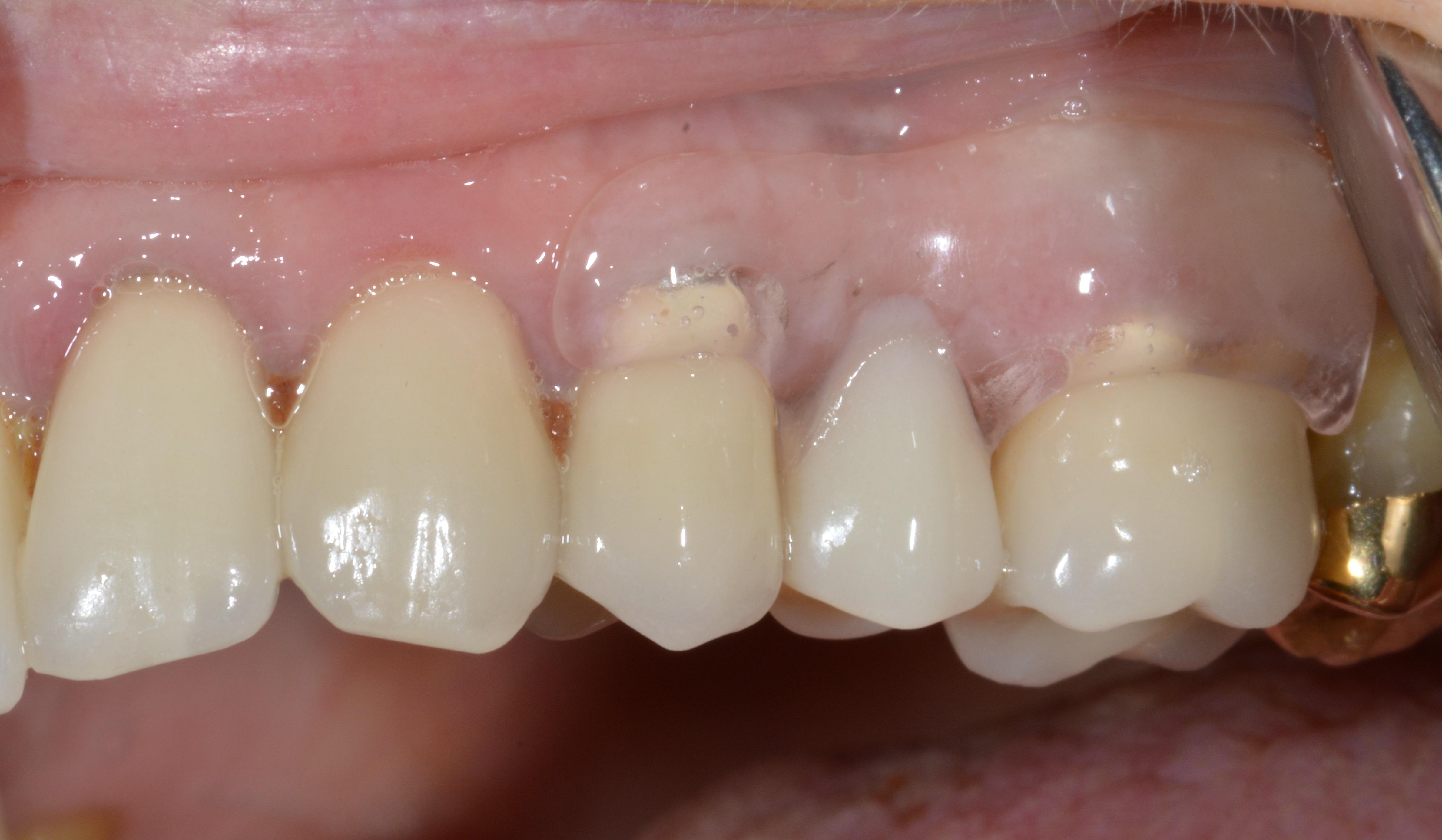 Clearsplint® Prothese Bild 2