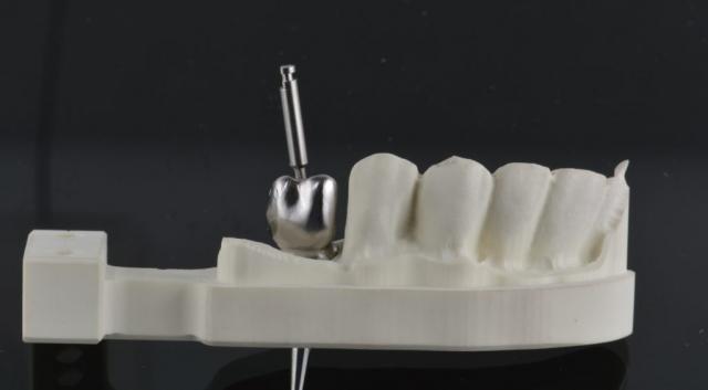 Implantat, Indiv abutment, I Butment 3
